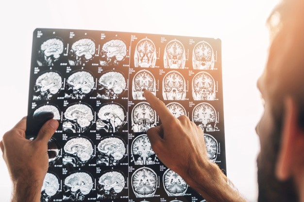 A doctor examining the MRI of a patient that has gone through a TBI.